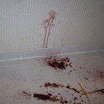 Atlanta blood cleanup